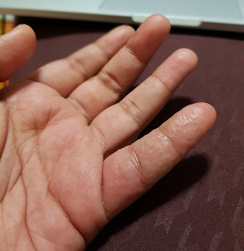 Unusual swollen finger condition - Suggestions required - Ketogenic Forums