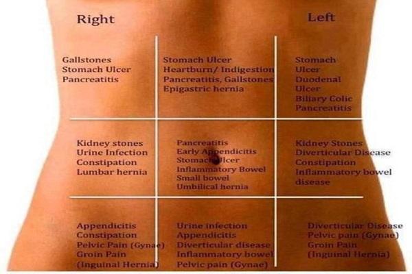 abdominal-pain-map